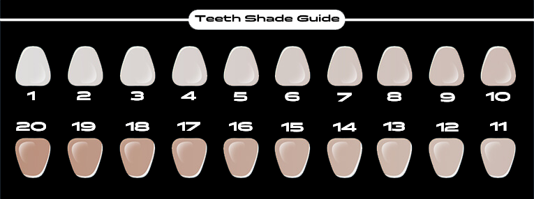Sexy Smile Kit Teeth Whitening Shade Guide